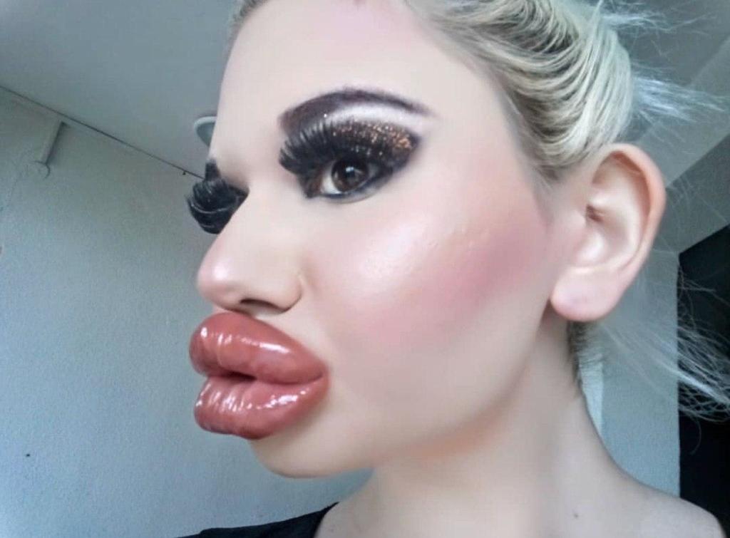 22-летняя студентка из Болгарии увеличила губы, чтобы стать похожей на куклу Барби Личности,губы