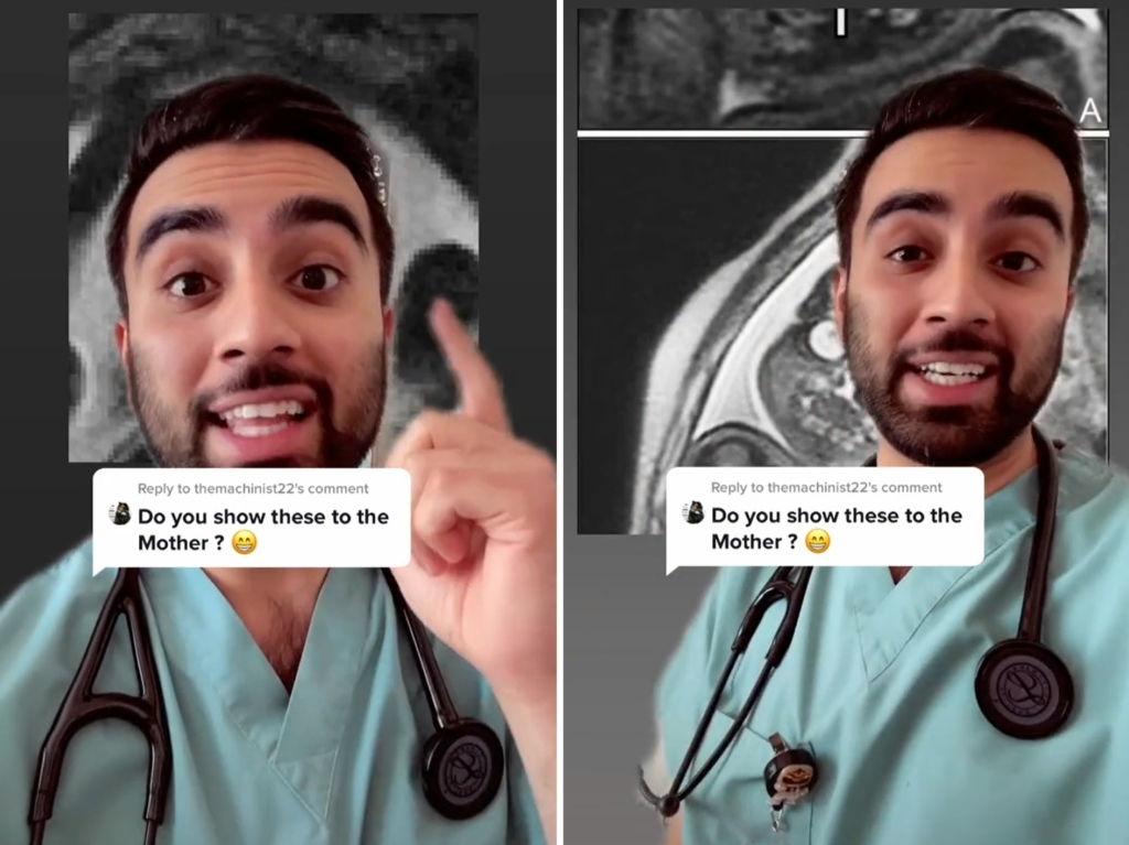 Врач назвал причину, по которой они всегда отказываются показывать беременным девушкам снимки МРТ